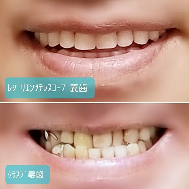 クラスプ義歯とレジリエンツテレスコープ義歯の比較