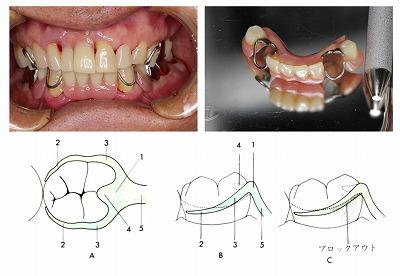 クラスプ義歯.jpg