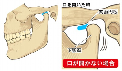 TMJ treatment 002.jpg