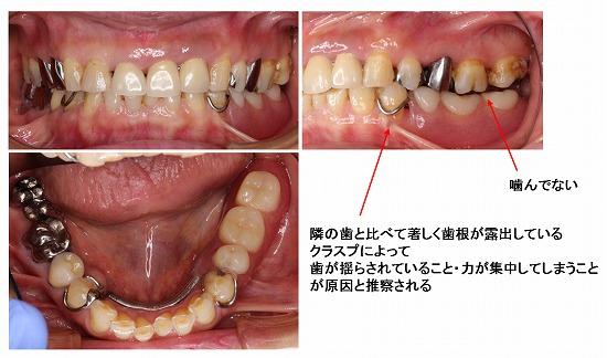 arayashiki riegel001-01.jpg