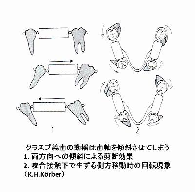 temporary denture K.H.Korber.jpg